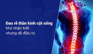 Đau rễ thần kinh cột sống khó nhận biết nhưng dễ điều trị