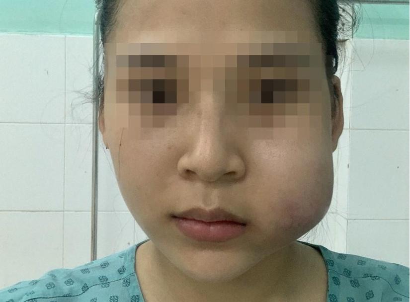 Cô gái bị nhiễm trùng, áp xe má sau khi tiêm filler tạo khuôn mặt đầy đặn