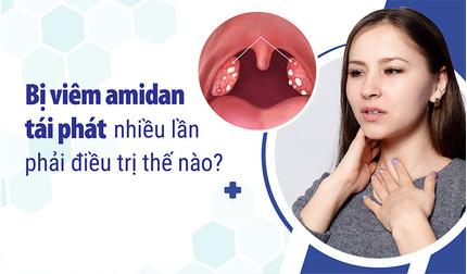 Bị viêm amidan tái phát nhiều lần phải điều trị thế nào?