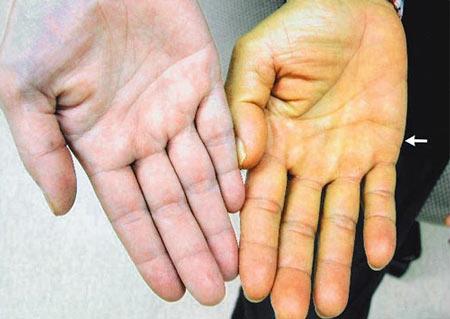 dấu hiệu của bệnh gan là gì?