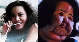 Phẫu thuật thẩm mỹ hỏng, nữ ca sĩ Hàn Quốc xinh đẹp thành mặt quỷ