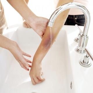 Chuyên gia y tế hướng dẫn cách sơ cứu khi bị bỏng nước sôi